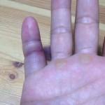 四十九発目-嗚呼、我が小指・・・-
